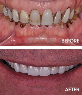 Before and after photos featuring crowns and veneers