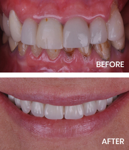 Before and after photos featuring hybrid dentures